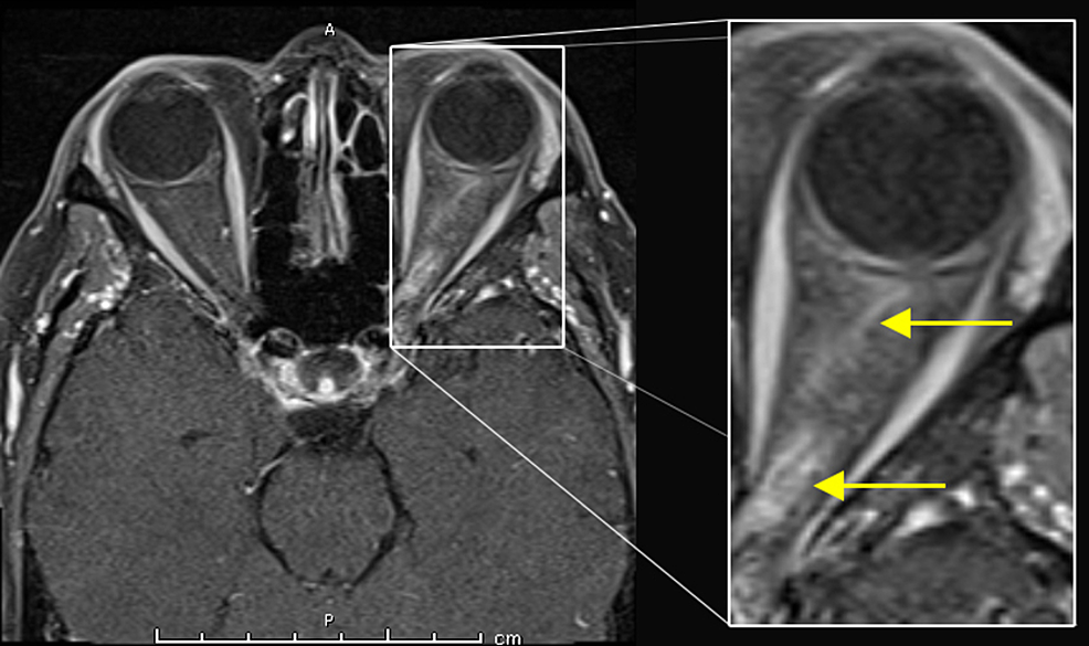 T1-weighted-axial-MRI-gadolinium-enhanced-image:-enhancing-and-thickened-optic-nerve-(yellow-arrows)