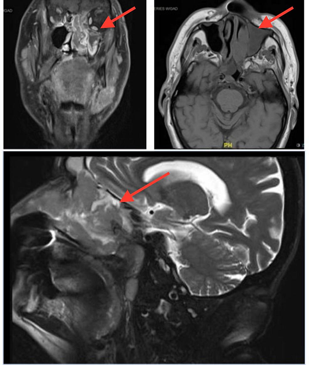 Pre-treatment-magnetic-resonance-imaging-(MRI)