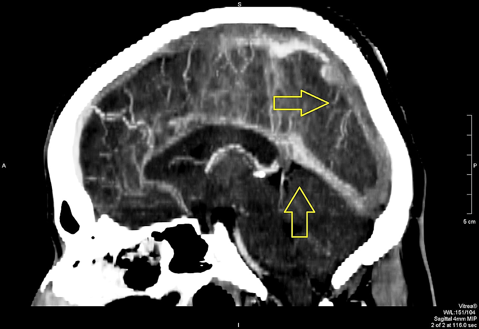 Sagittal-view-on-contrast-CT-scan-showing-extensive-sinus-blockage