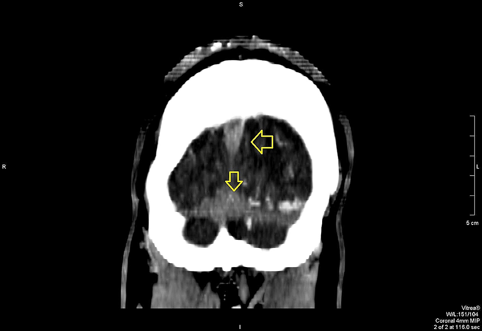 Coronal-view-on-contrast-CT-scan-showing-superior-sagittal-sinus-blockage-and-extensive-thrombosis-at-the-confluences-of-the-sinuses