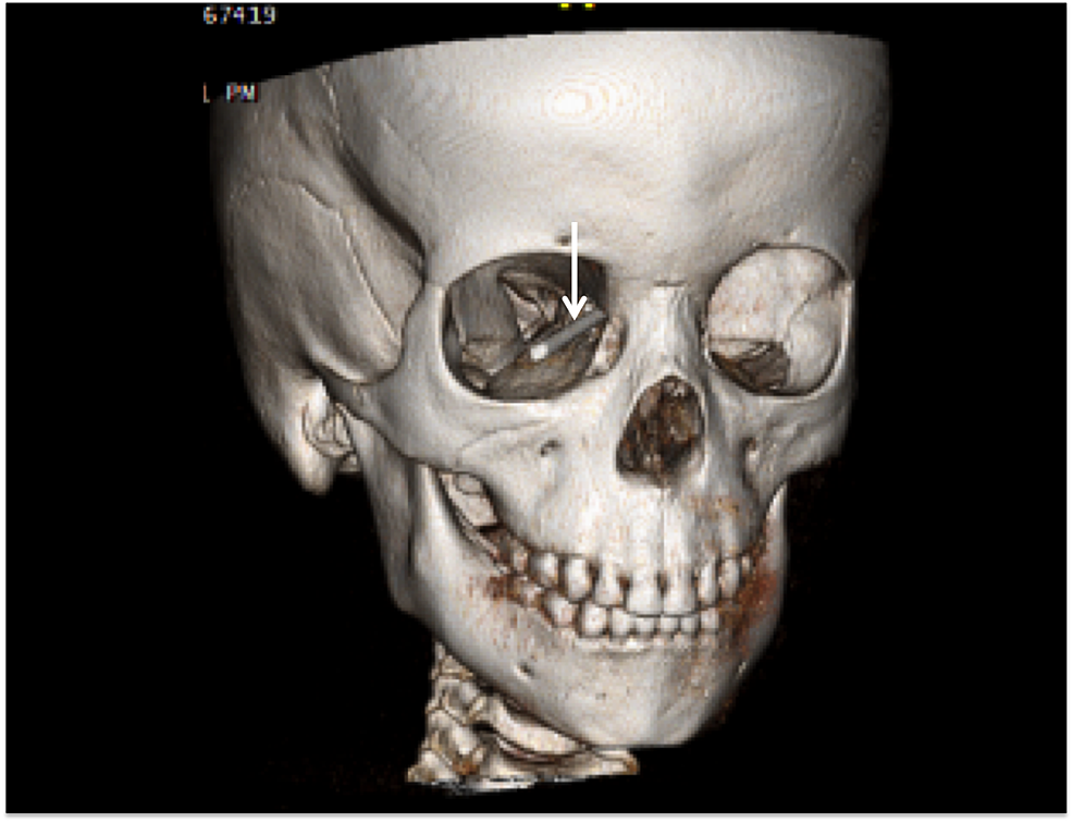 3D-CT-reconstruction-of-an-adolescent-who-had-fallen-on-a-wooden-stake-(arrow).-The-stake-entered-the-right-orbit-and-traversed-the-ethmoid-sinuses-to-become-intracranial.