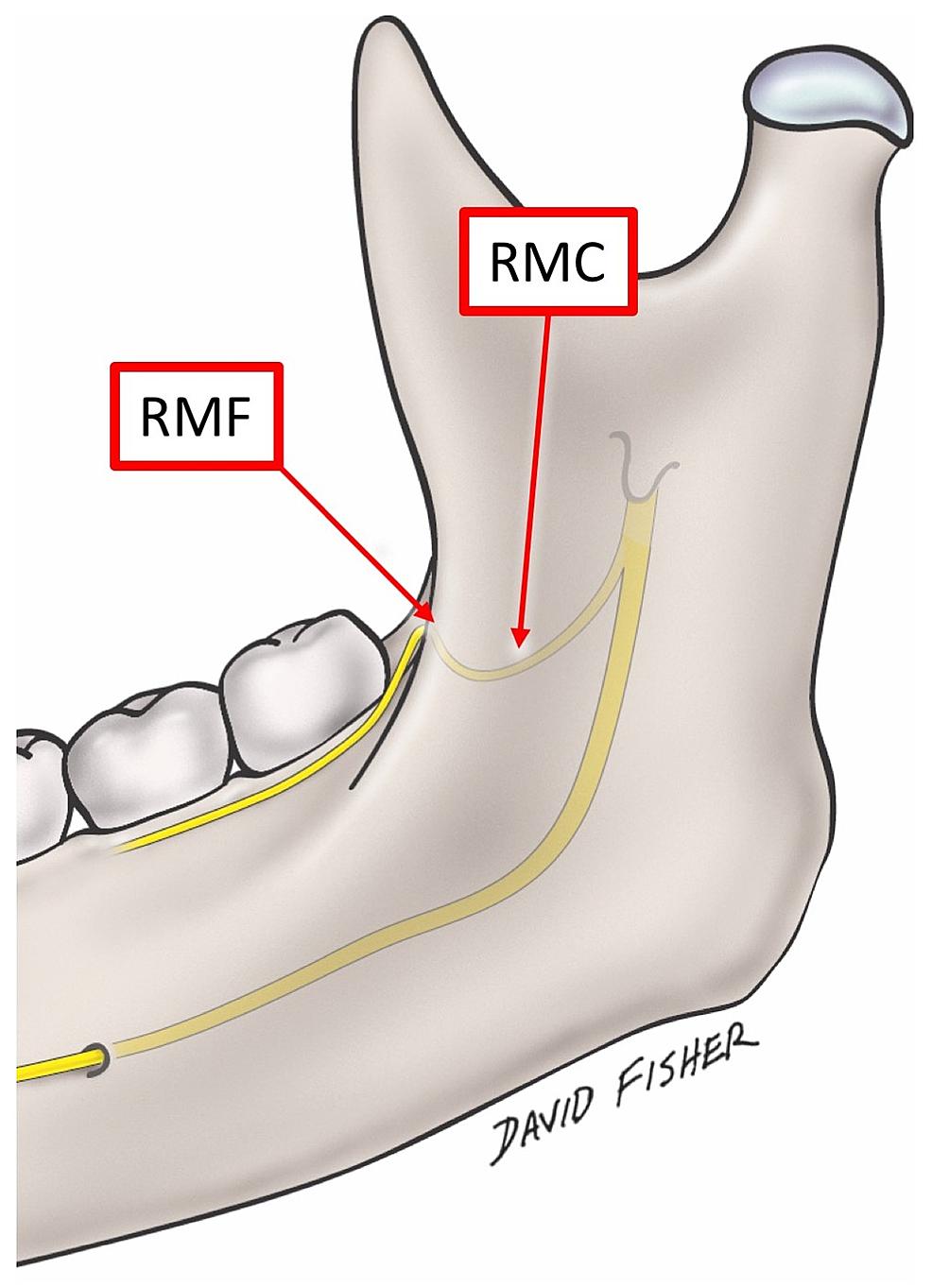 The-retromolar-foramen,-canal-and-the-nerve.