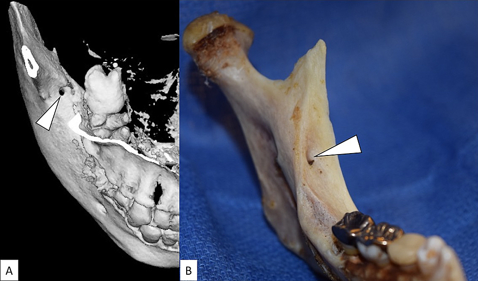 The-retromolar-foramen.