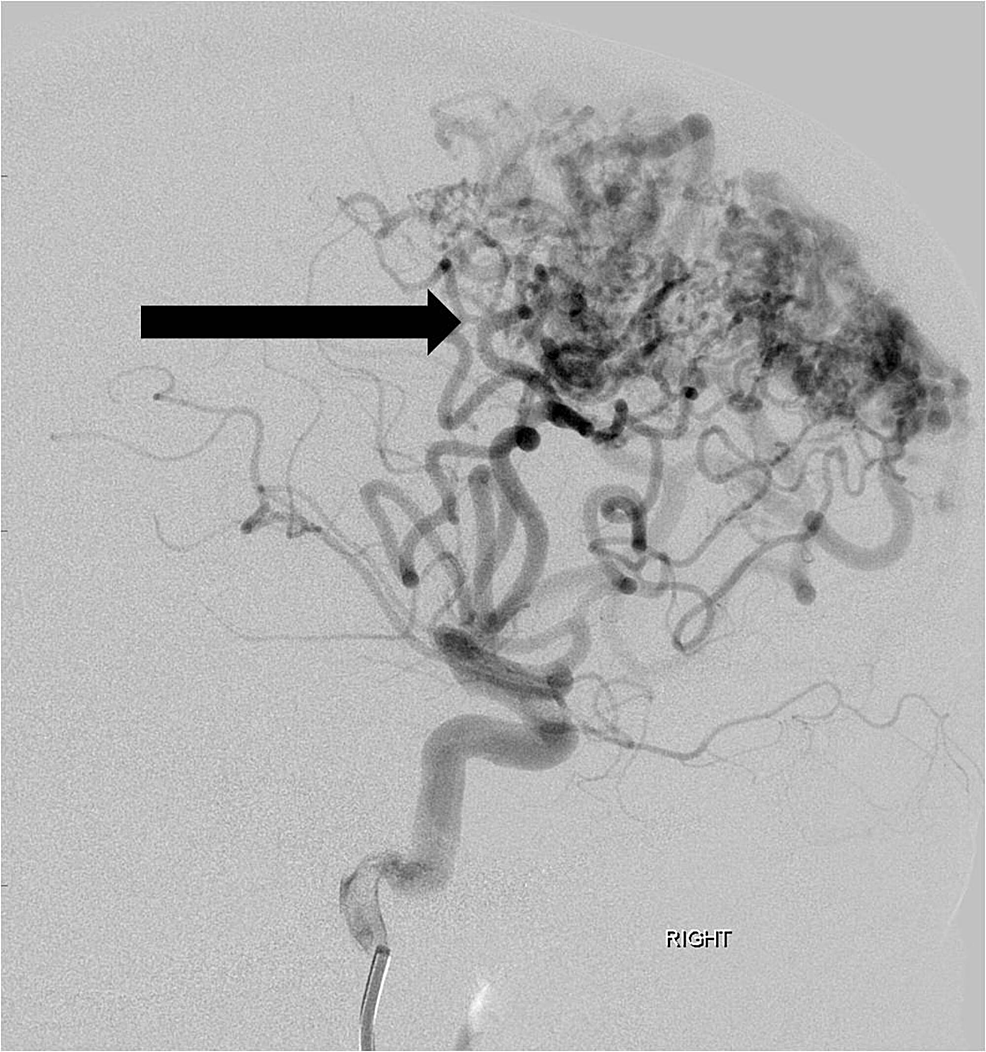 Lateral-projection-angiographic-image-from-a-right-internal-carotid-artery-injection-shows-a-large-arteriovenous-malformation-nidus-(arrow)-fed-by-multiple-enlarged-feeding-anterior-and-middle-cerebral-artery-branches.