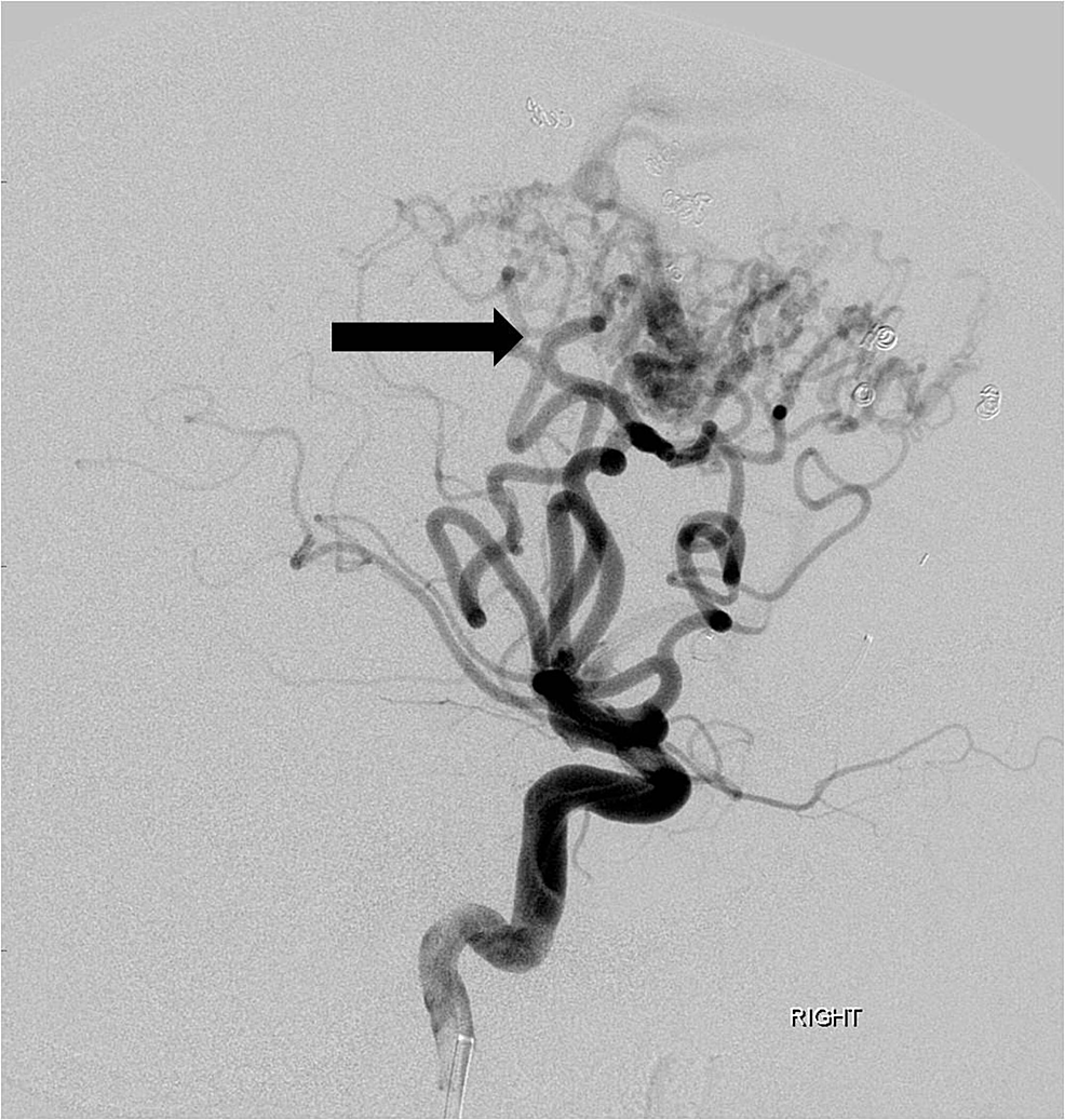 Following-embolization-of-multiple-anterior-cerebral-artery-feeding-branches-with-particles,-gel-foam-and-coils,-there-is-marked-reduction-in-size-and-flow-dynamics-of-the-arteriovenous-malformation-(arrow).