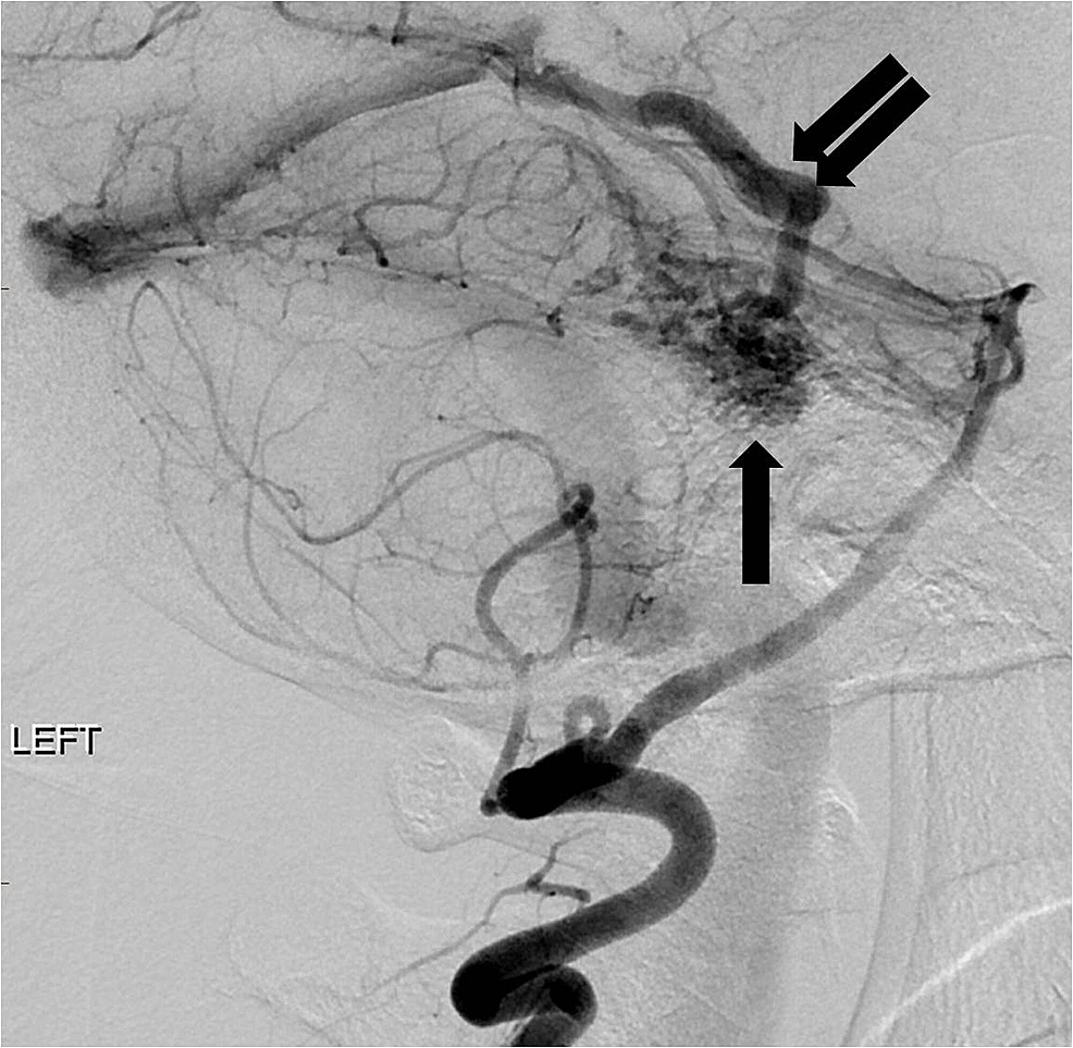 Lateral-projection-angiogram-from-a-left-vertebral-artery-injection-reveals-a-compact-arteriovenous-malformation-nidus-in-the-posterior-fossa-(arrow)-with-an-enlarged-early-draining-vein-(double-arrow).