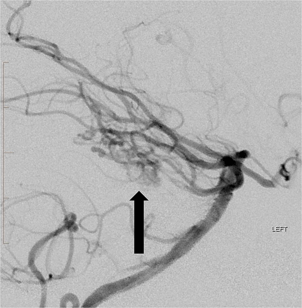 Following-embolization-of-the-superior-cerebellar-and-anterior-inferior-cerebellar-artery-branches-to-the-arteriovenous-malformation,-there-has-been-marked-reduction-in-the-size-and-flow-dynamics-of-the-arteriovenous-malformation-nidus-(arrow).