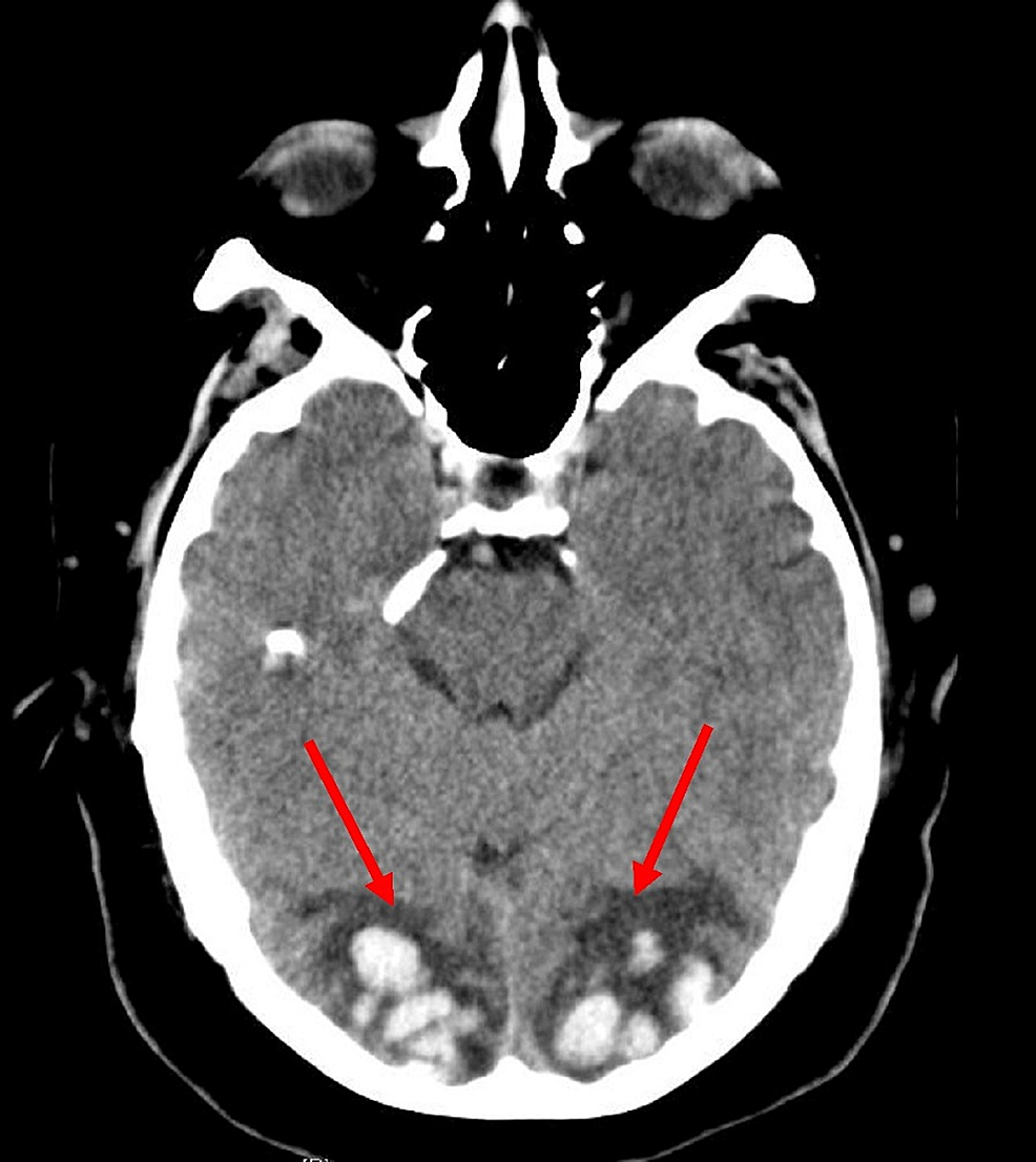Axial-computerized-tomography-scan-of-the-head-showing-a-hyperintense-signal-in-the-bilateral-occipital-lobes-(red-arrows)