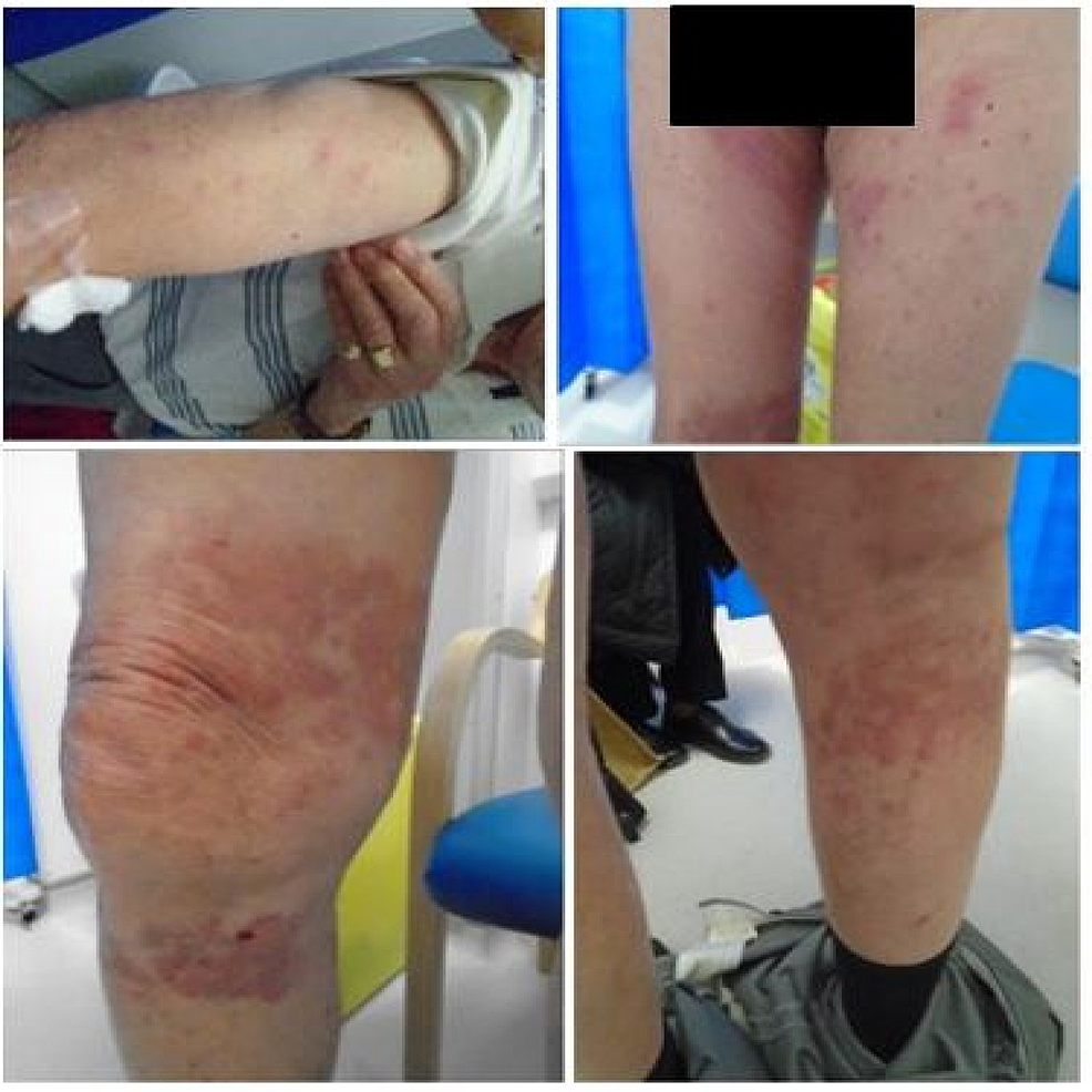 Appearance-of-rash-post-COVID-19-vaccination-(BNT162b2,-Pfizer-BioNTech)*
