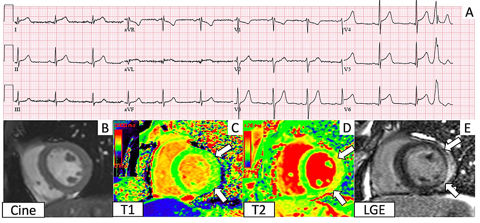 Electrocardiogram-(ECG)-and-cardiac-magnetic-resonance-imaging-(CMR)-findings-corresponding-to-Case-1