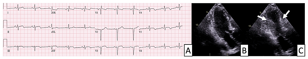 Electrocardiogram-(ECG)-and-echocardiography-findings-in-a-patient-with-stress-cardiomyopathy