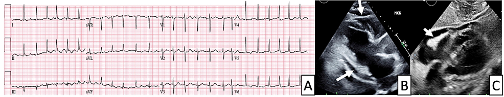 Electrocardiogram-(ECG)-and-echocardiography-findings-in-a-patient-with-pericarditis