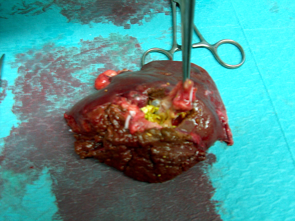 Surgical-specimen-showing-cysts-and-gallstones.