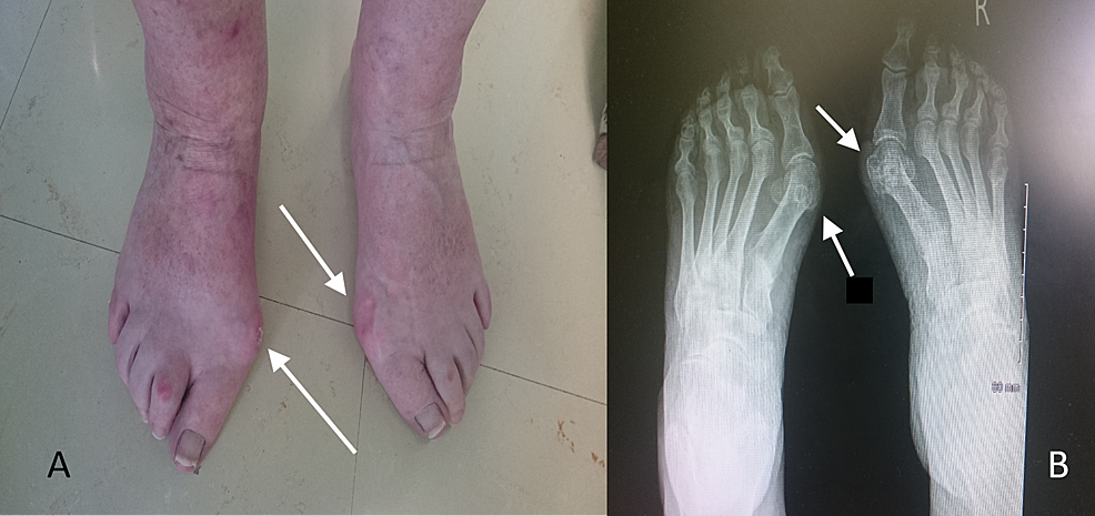 The-clinical-(A)-and-radiological-(B)-presentation-of-a-62-year-old-female-with-hallux-valgus-deformity.