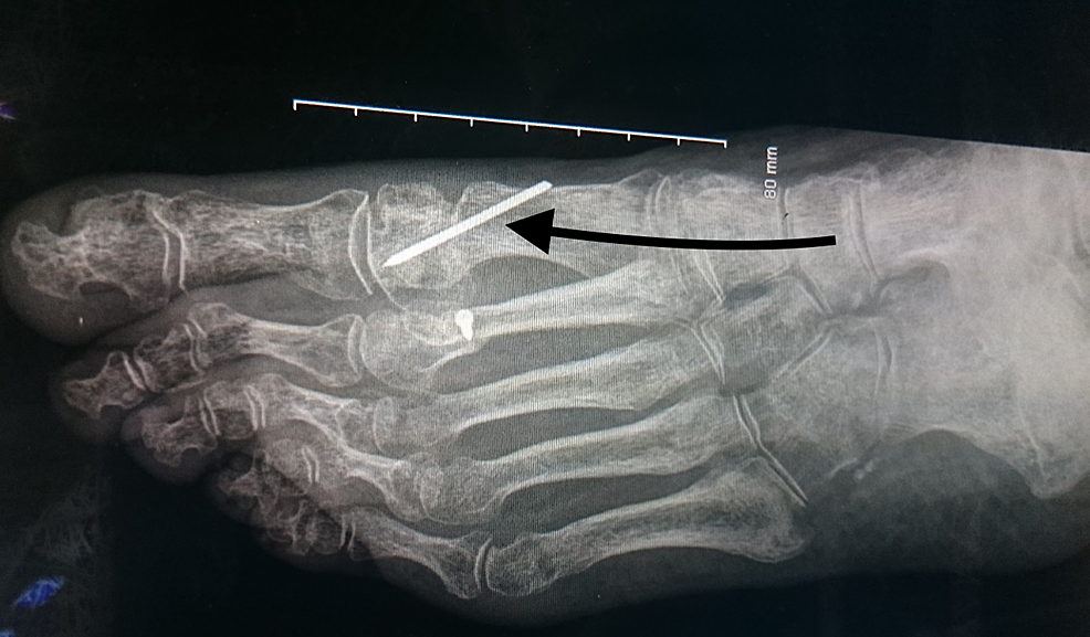 The-distal-chevron-osteotomy-and-Kirschner-(K)-wire-fixation.