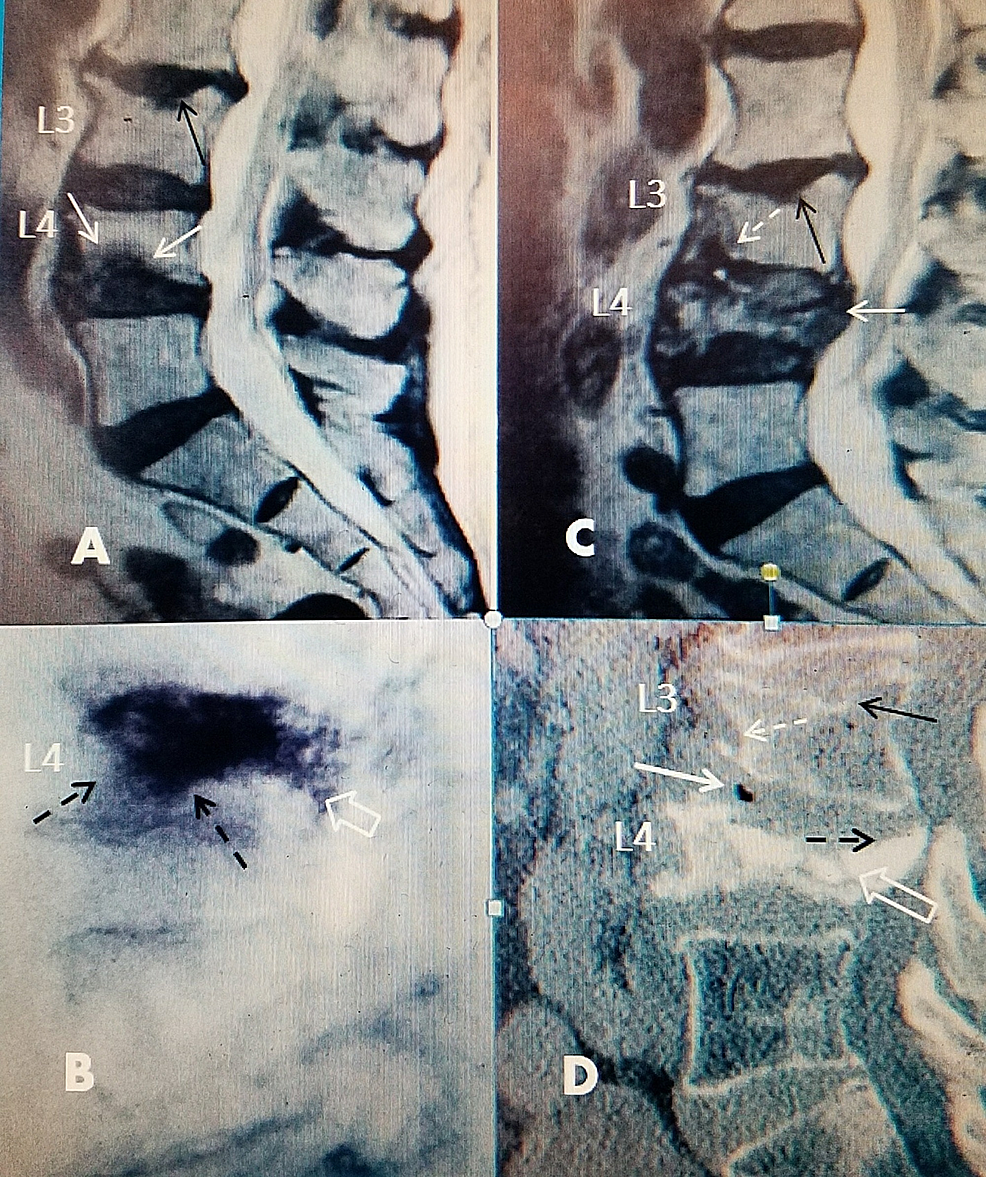Progression-of-L4-inferior-endplate-fracture-after-vertebral-augmentation