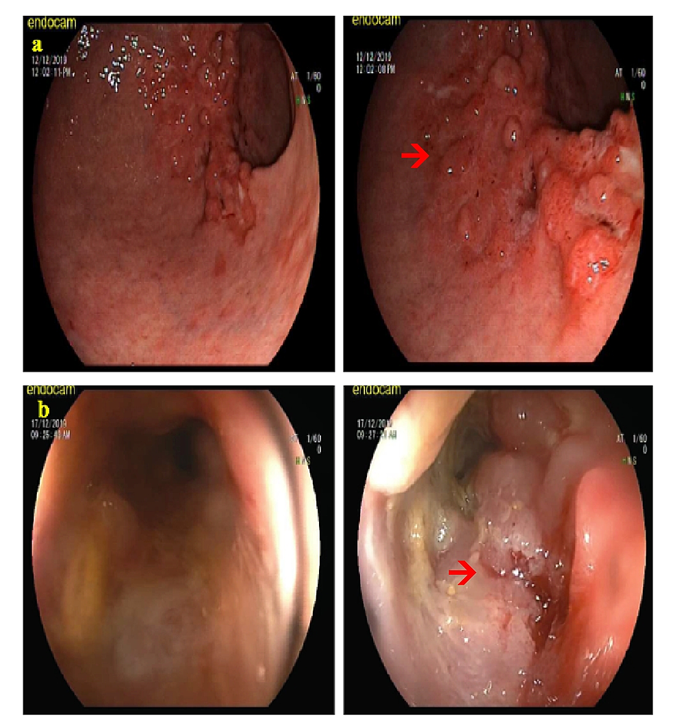 Preoperative-endoscopic-findings.