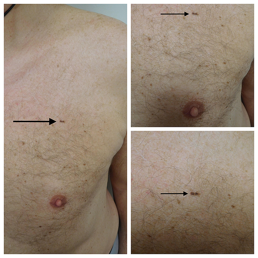 Cureus Linear Malignant Melanoma In Situ Reports And Review Of Cutaneous Malignancies Presenting As Linear Skin Cancer
