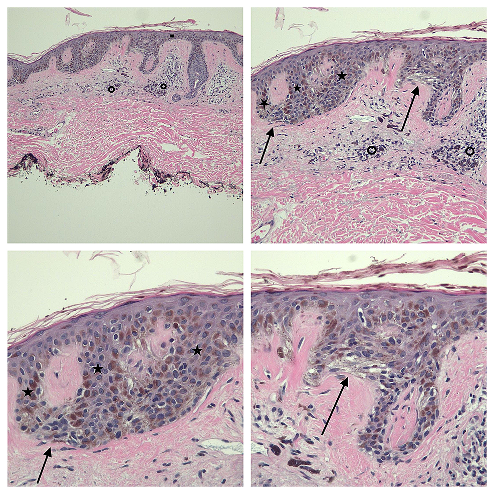 Low-(upper-left),-intermediate-(upper-right),-and-higher-(lower-left-and-lower-right)-magnification-views-of-the-pathology-of-the-linear-melanoma-in-situ-from-the-left-chest-of-a-72-year-old-male.
