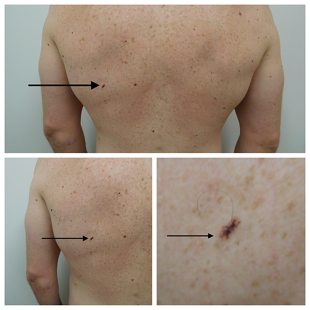 Distant-(top)-and-closer-(lower-right-and-lower-left)-views-of-the-clinical-presentation-of-linear-melanoma-in-situ-arising-in-a-compound-melanocytic-nevus-on-the-left-mid-back-of-a-31-year-old-male.
