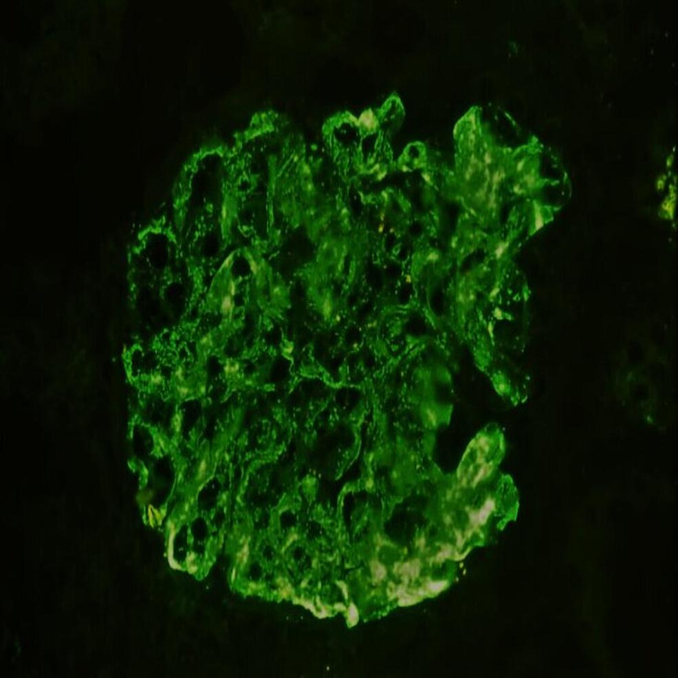 Immunofluorescence-showing-3+-intensity-mesangial-and-capillary-IgA-staining-(x200)