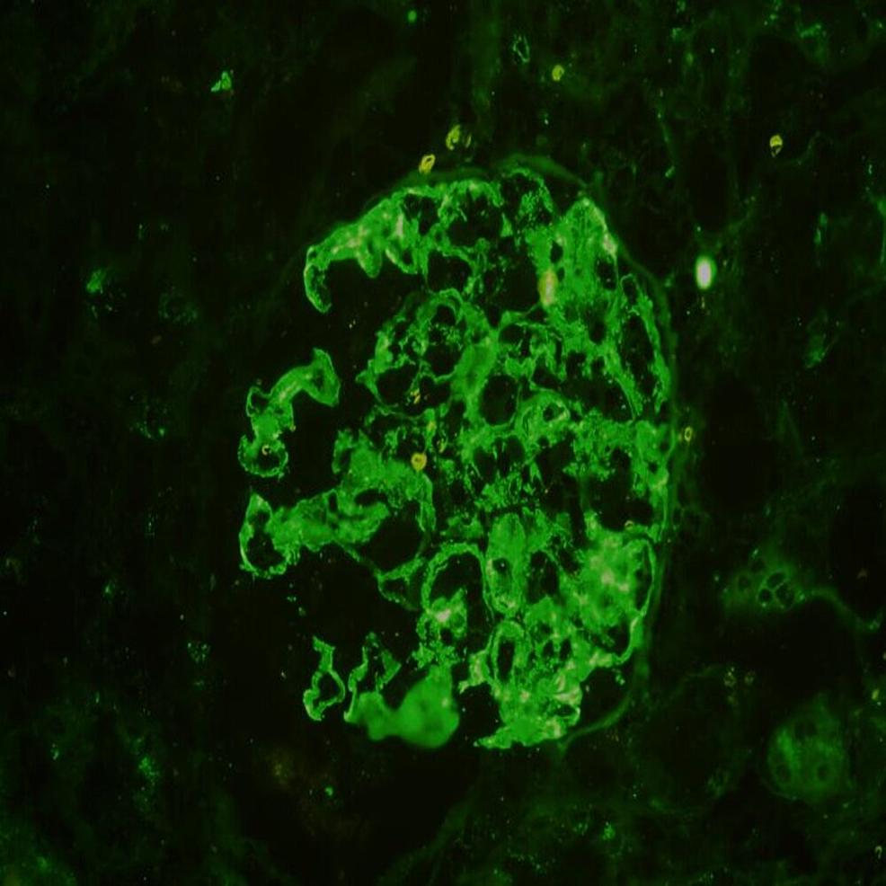 Immunofluorescence-showing-3+-mesangial-IgG-staining-(x200)