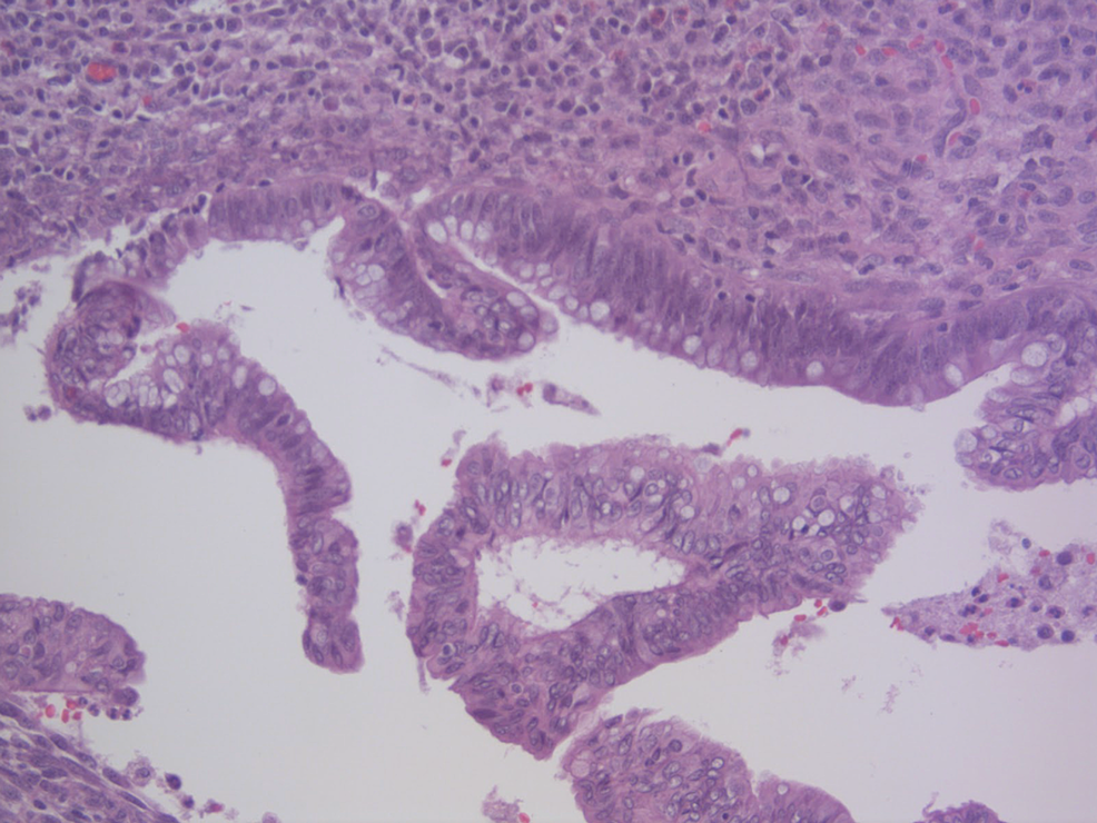 High-power-view-of-adenomatous-type-epithelium-with-pseudostratified-nuclei-and-decreased-mucin-production.-(H&E,-200X)