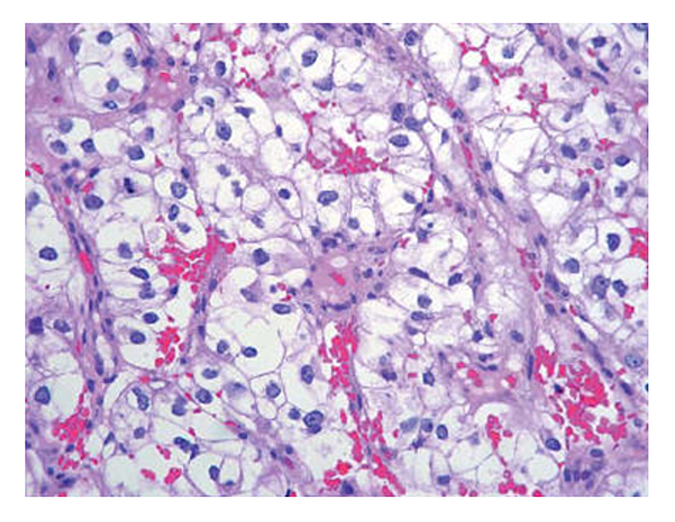 Biopsy-of-the-clear-cell-renal-cell-carcinoma.