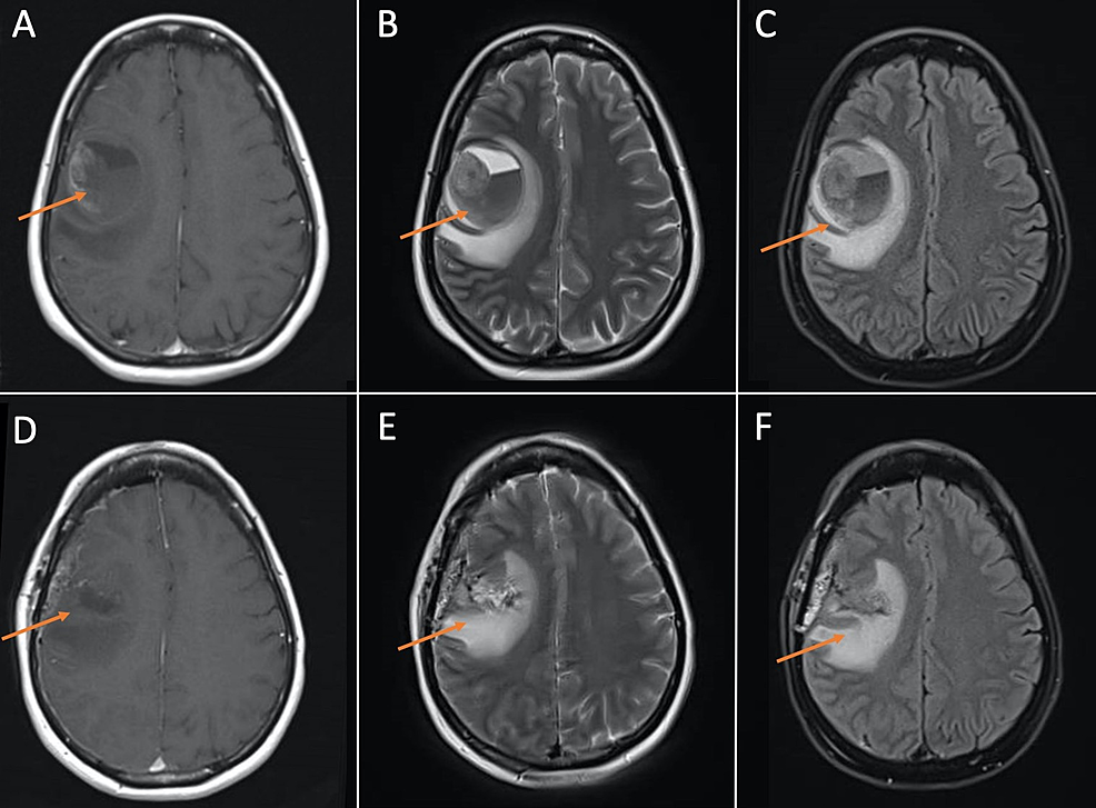 MRI-brain-demonstrating-large-hemorrhagic-cavity-in-the-right-frontal-lobe-with-an-enhancing-focus-along-the-right-superolateral-margin-representing-a-hemorrhagic-mass.-(A),-(B),-and-(C)-are-pre-operative-T1,-T2,-and-FLAIR-images,-respectively.-(D),-(E),-and-(F)-are-post-operative-T1,-T2,-and-FLAIR-images,-respectively,-demonstrating-resection-of-mass-and-post-surgical-changes.