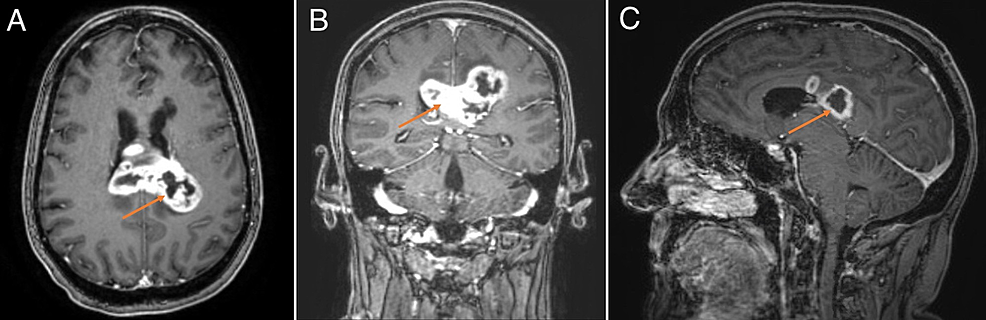 MRI-brain-demonstrating-a-heterogeneously-enhancing-mass-with-cystic-and-necrotic-changes-centered-within-the-splenium-of-the-corpus-callosum.-(A),-(B),-and-(C)-are-T1-weighted-post-contrast-axial,-coronal,-and-sagittal-views,-respectively.