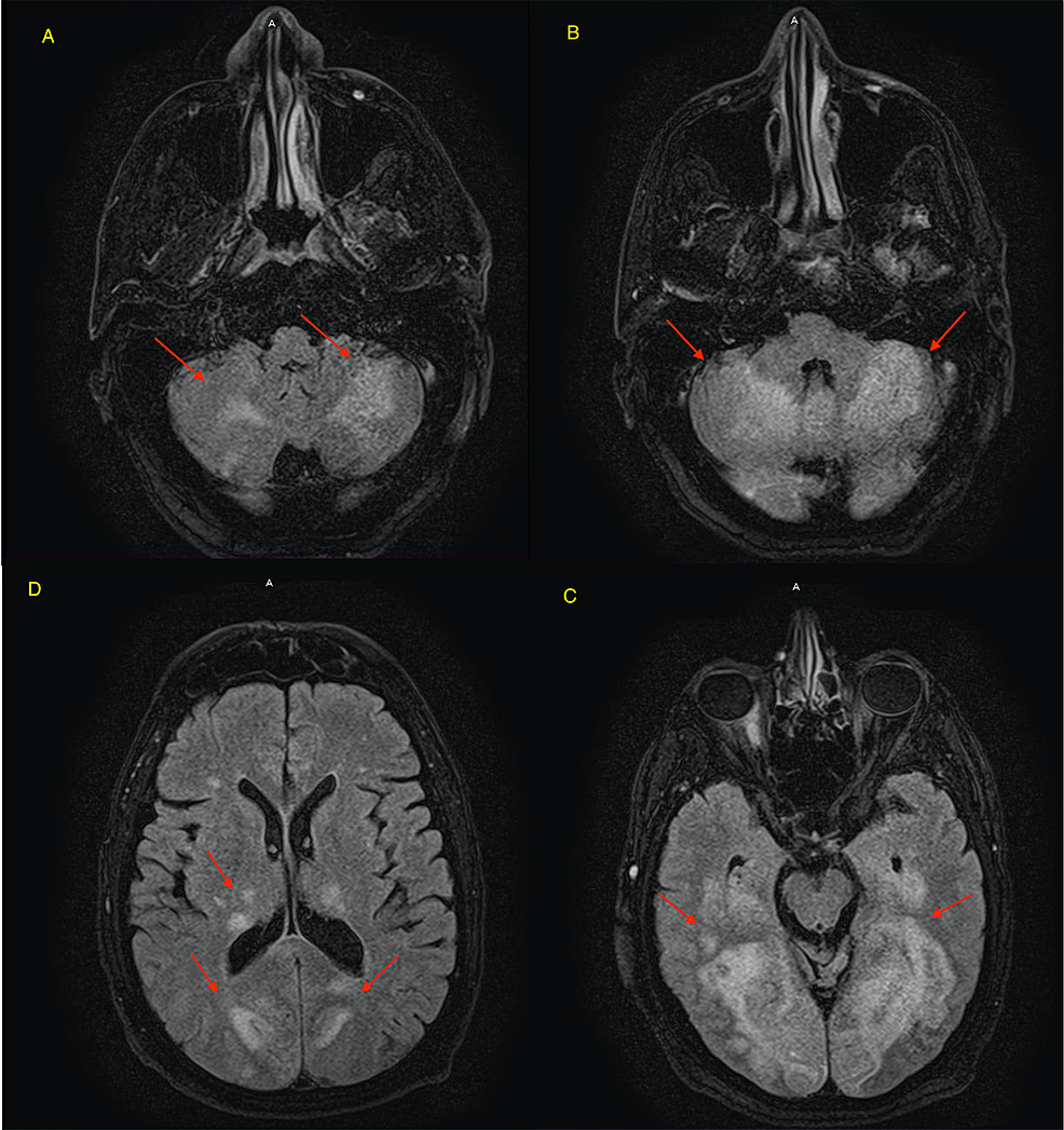 MRI-without-intravenous-contrast-on-day-7-showed-an-extensive-increased-signal-intensity-in-the-cerebellum-(red-arrows-in-A-and-B)-and-in-the-occipital-lobes-bilaterally-(D-and-C).-There-are-also-abnormal-changes-in-the-thalami-bilaterally-and-the-splenium-of-the-corpus-callosum-including-a-portion-of-the-medial-posterior-temporal-lobes-bilaterally.-There-is-associated-increased-diffusion-signal-intensity-with-variable-low-diffusion-signal.-These-findings-are-in-a-posterior-circulation-distribution-bilaterally.-Findings-are-consistent-with-ischemic-changes,-which,-in-a-patient-with-the-given-history-of-COVID-lung-infection,-is-likely-related-to-sequela-of-infectious-or-inflammatory-process.-Findings-related-to-PRES-could-be-considered-though-much-more-extensive-than-usually-expected.