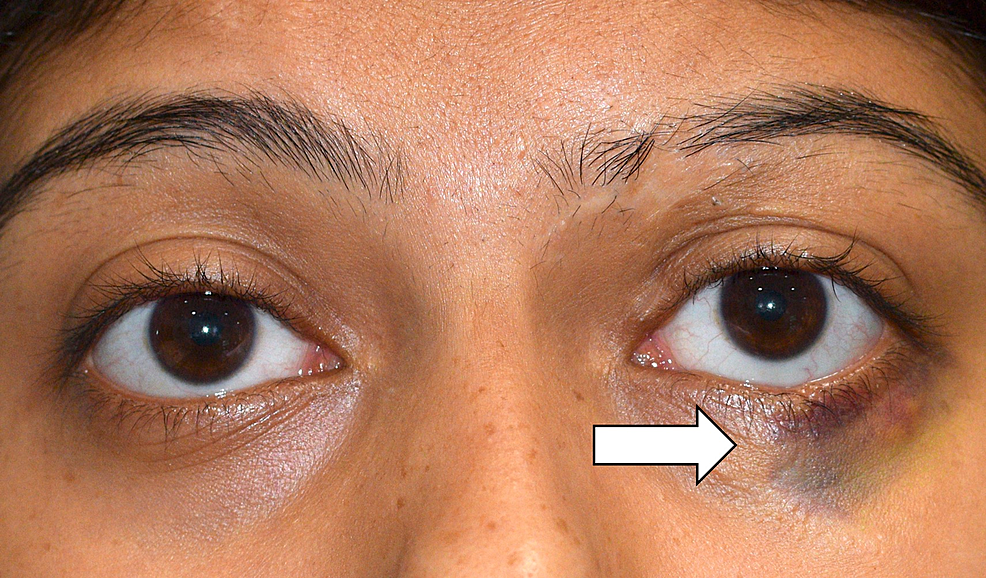External-photograph-of-the-patient-highlighting-the-ecchymosis-involving-the-left-lower-lid-(white-arrow).
