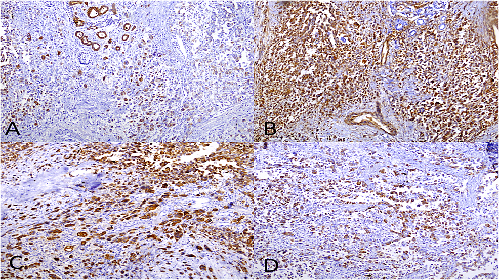 Immunohistochemical-staining-of-tumor.-(A)-Cytokeratin-7-(x4);-(B)-Vimentin-(x10);-(C)-CD-68-(x10)-and-(D)-epithelial-membrane-antigen-(EMA)-(x10).