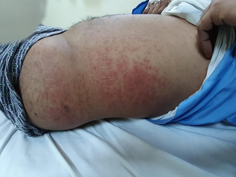 maculo-papular-rash