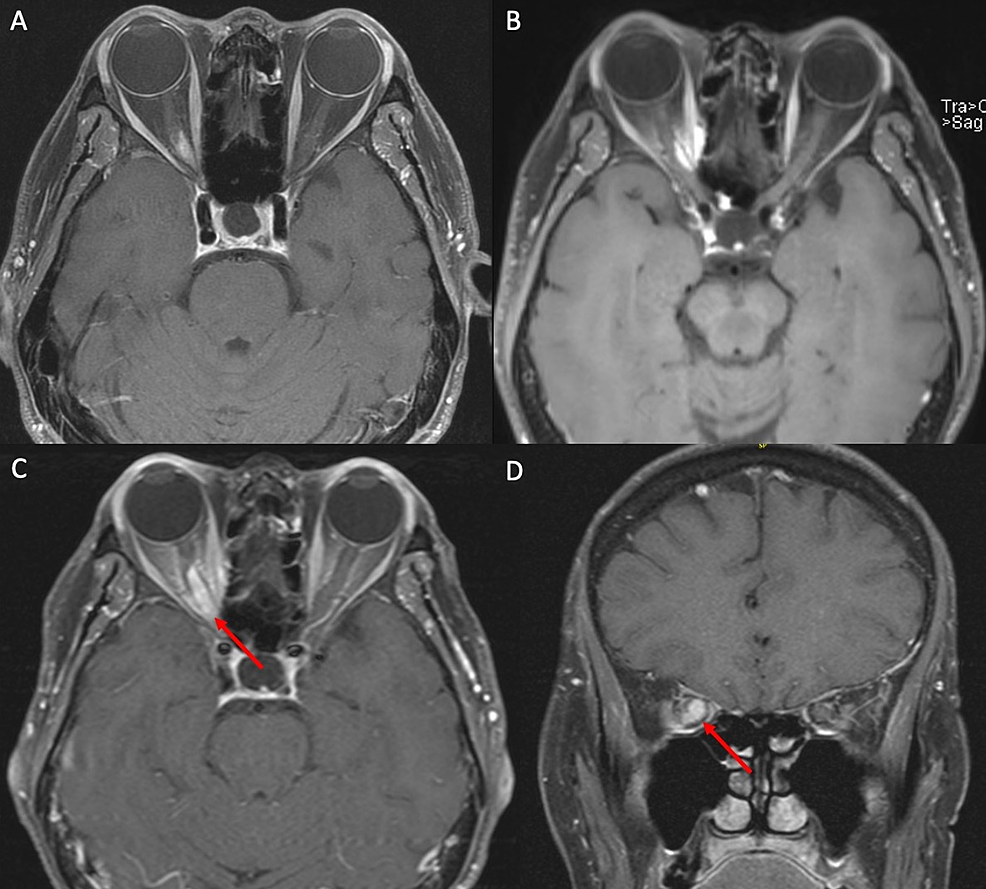 MRI-demonstrating-ONSM-before-and-after-fractionated-radiotherapy.