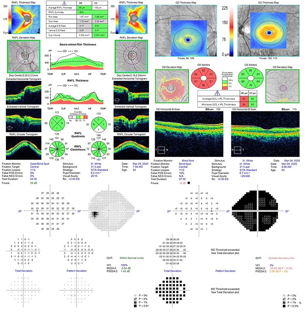 OCT-and-visual-fields-on-presentation.