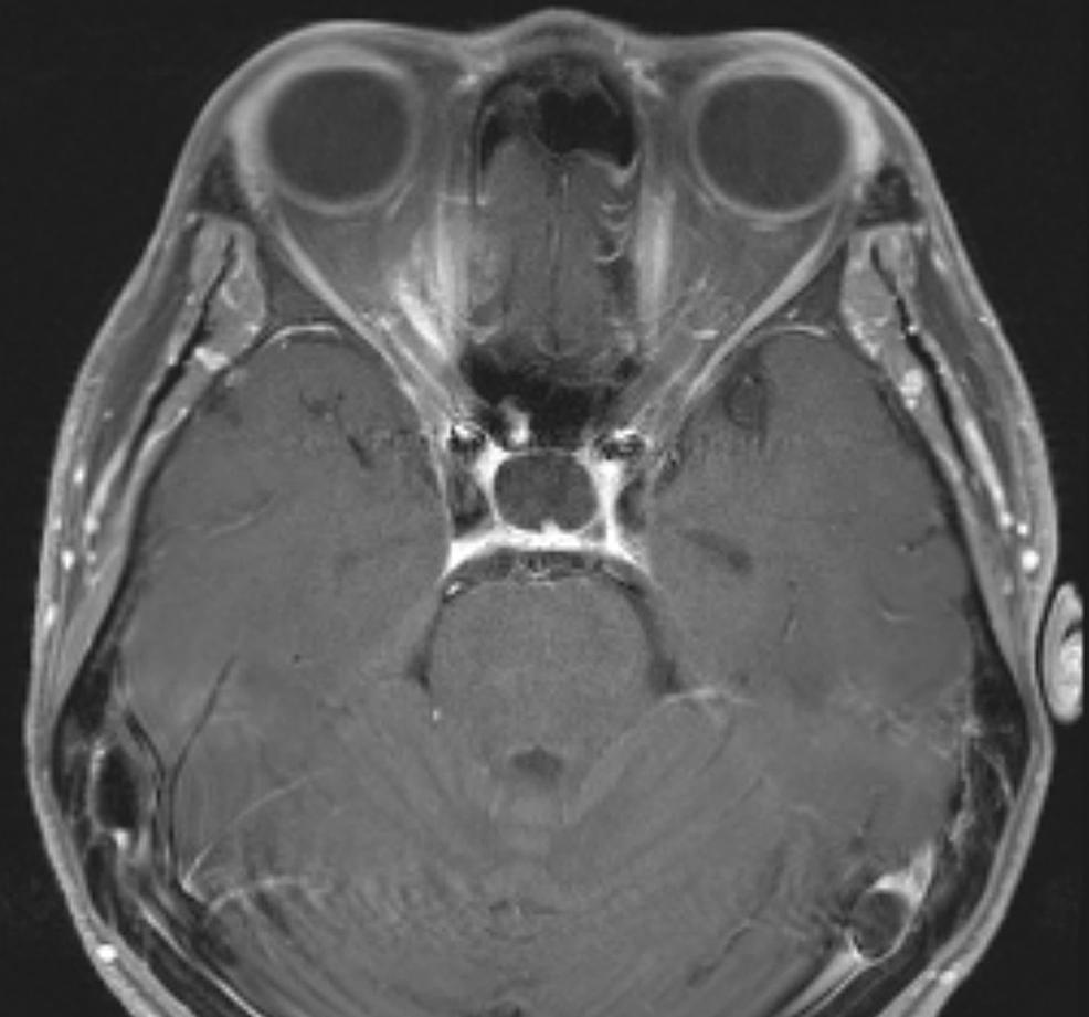 MRI-nine-months-post-radiosurgery.