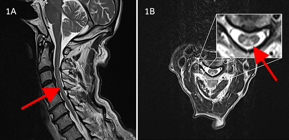 T2-weighted-MRI-images-of-the-cervical-cord