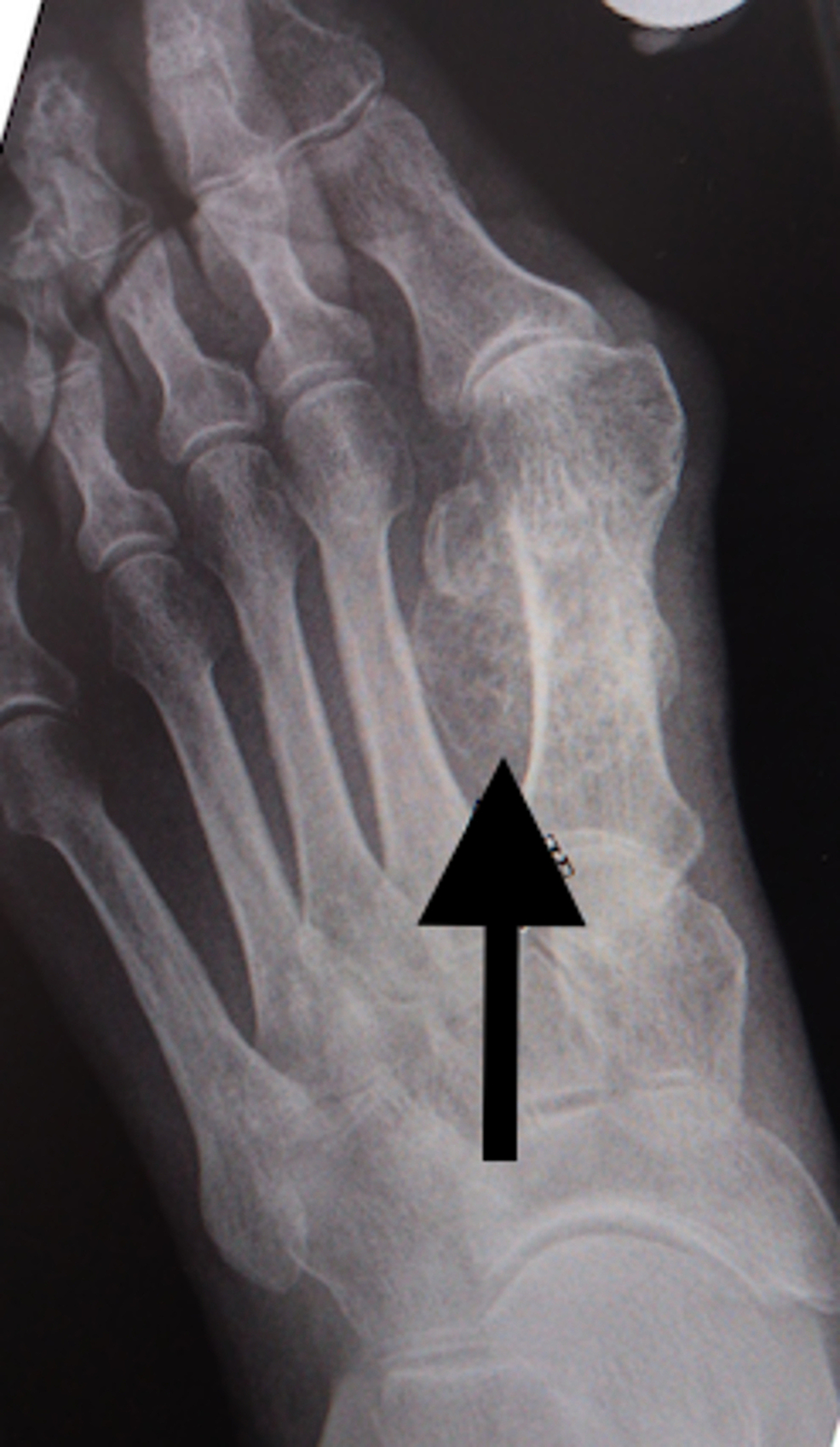 X-ray-of-osteochondroma.