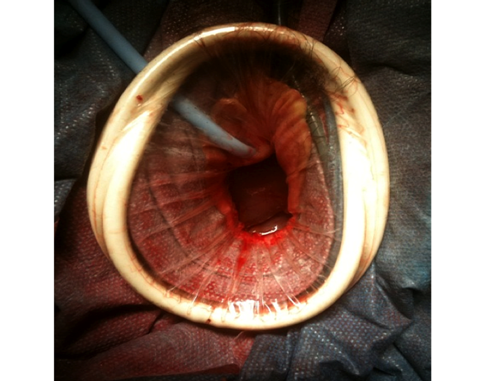 Cureus Novel Technique For Removal Of The Uterus After