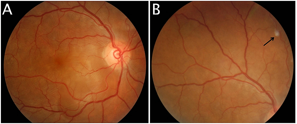 Fundus-photography-of-right-eye