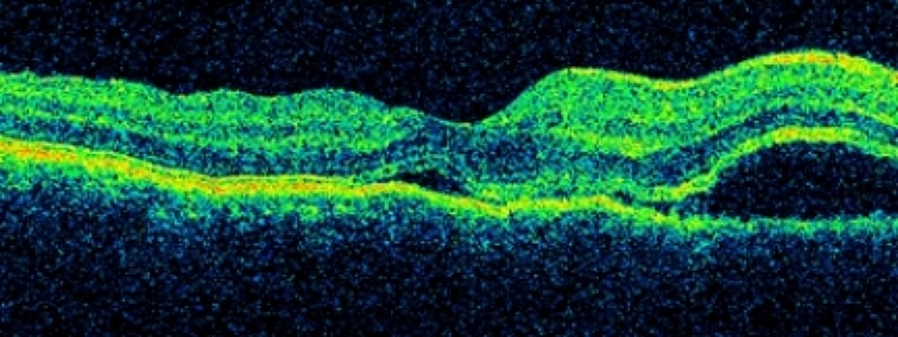 Optical-coherence-tomography-of-right-macula
