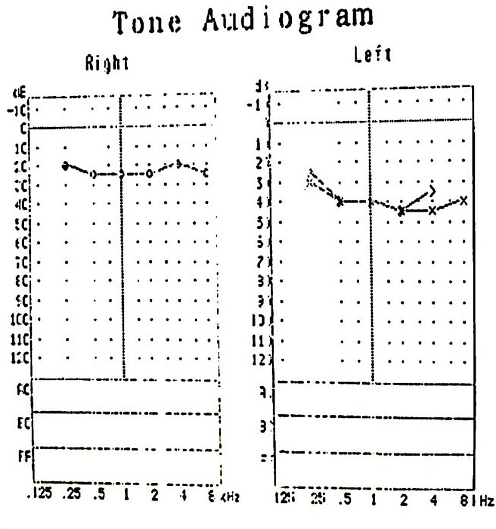 Pure-tone-audiogram