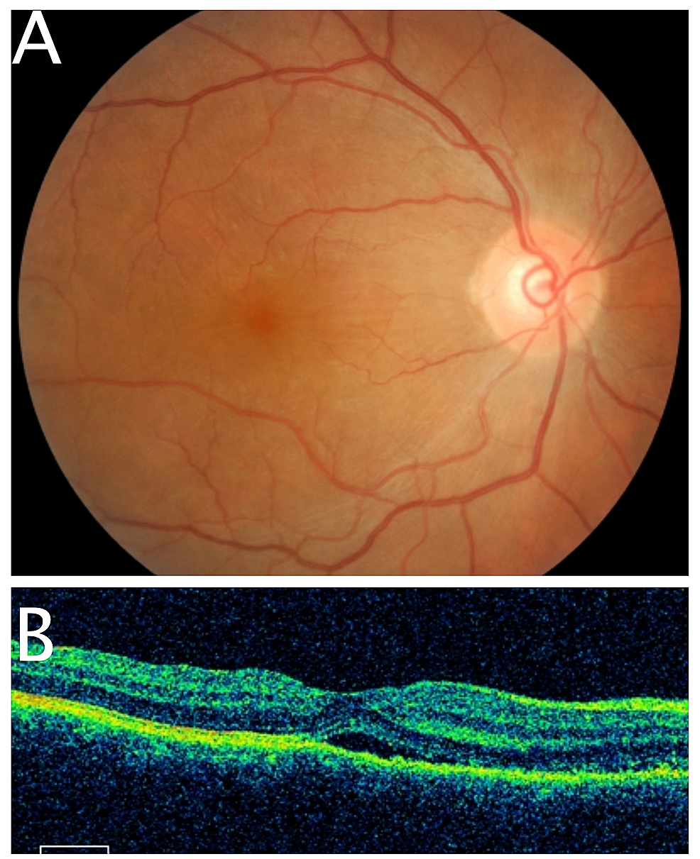 Fundus-photography-and-optical-coherence-tomography-of-right-eye