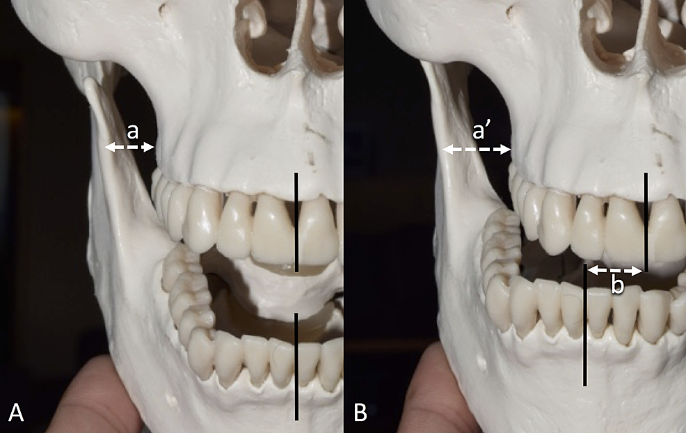 Skull-model-demonstrates-the-horizontal-distance-between-the-lateral-most-bulging-point-of-the-alveolar-part-of-the-maxilla-to-the-anterior-border-of-the-ramus-of-the-mandible-ramus.-The-mandible-is-opened-maximally-(a)-and-is-deviated-ipsilaterally-(a').-Note-the-horizontal-change-of-the-position-of-the-central-incisors-along-with-the-mandibular-deviation-(b).-A:-Mandible-opened-maximally,-B:-Mandible-position-deviated-ipsilaterally.