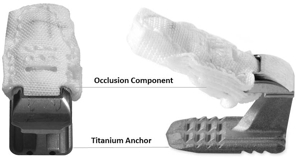 Annular-closure-device-possessing-a-mesh-occlusion-component-and-titanium-anchor.