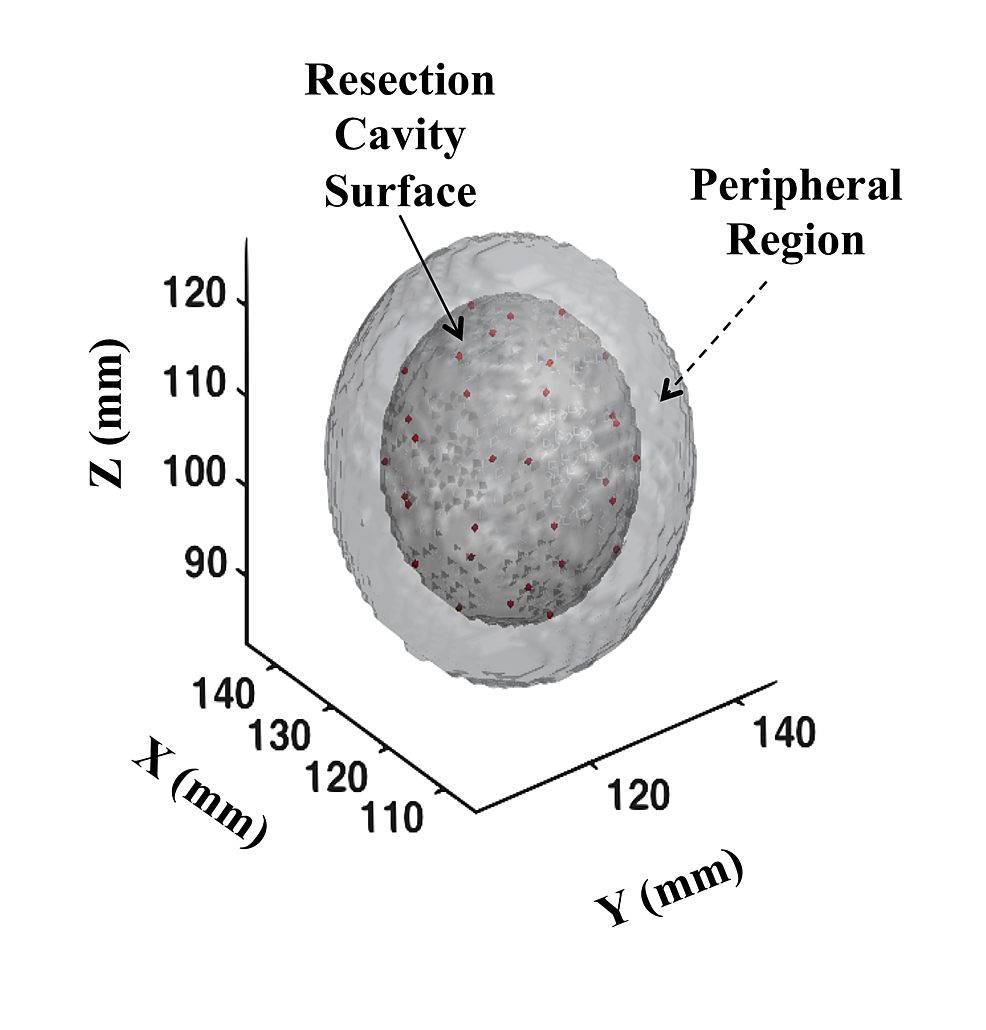 Three-dimensional-plot-of-the-resection-cavity-as-modeled-for-the-current-study