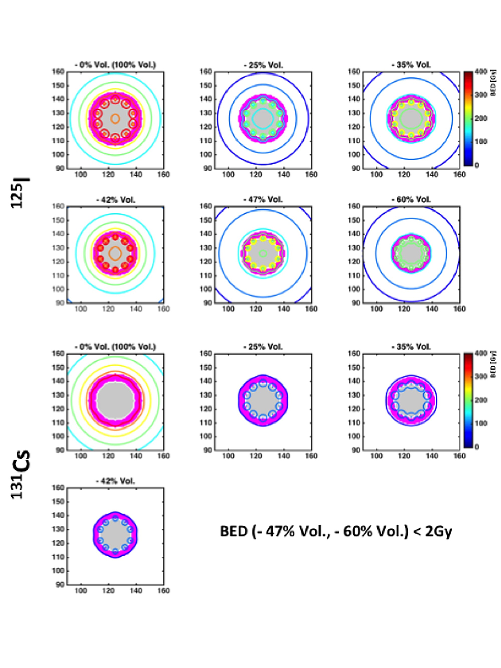 Comparison-of-the-planar-isodose-distributions-(within-the-transverse-cross-sectional-x-y-planes)-between-I-125-and-Cs-131-at-0,--1.7,-3.6,-5.9,-11.7,-and-20.5-months-after-the-implant-procedure