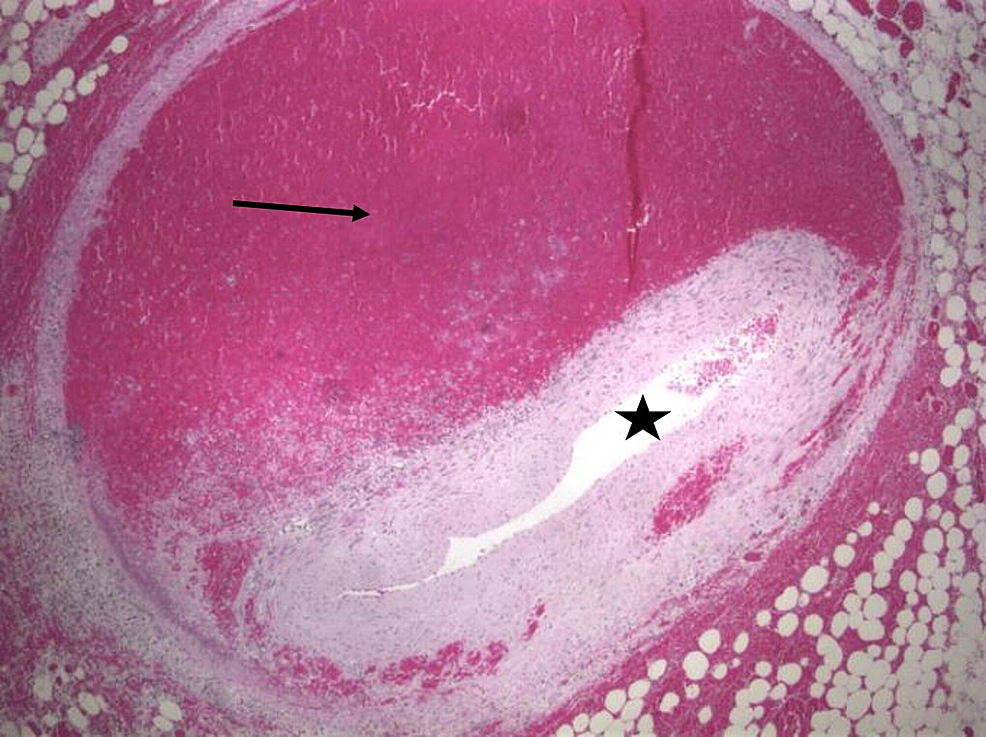 Cross-section-of-the-posterior-descending-coronary-artery-with-intramural-hematoma-(arrow)-and-luminal-collapse-(star)