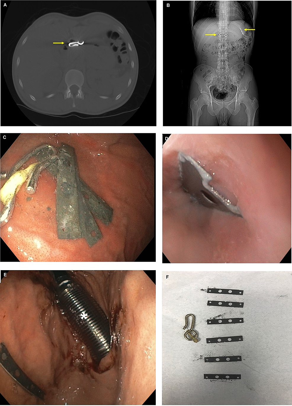 A-–-Coronal-computed-tomography-scan-of-a-curtain-hook-(arrow).-B-–-Axial-computed-tomography-scan-showing-a-curtain-hook-and-a-single-razor-blade-(arrows).-C-–-Endoscopic-visualization-of-razor-blades-and-a-curtain-hook-in-the-stomach.-D-–-Razor-blade-seen-at-the-gastroesophageal-junction.-E-–-Overtube-(asterisk)-was-used-to-protect-the-mucosal-wall-during-foreign-body-removal.-F-–-Six-razor-blades-and-a-curtain-hook-were-sequentially-removed-from-the-body-of-the-stomach.